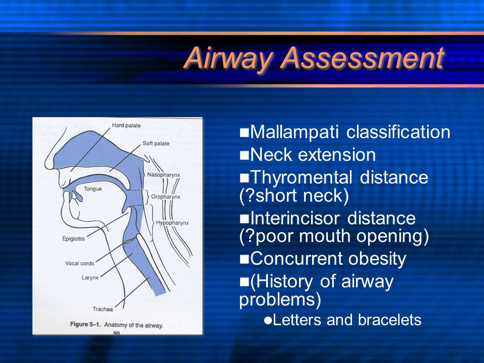 Airway Assessment Mallampati classification Neck extension