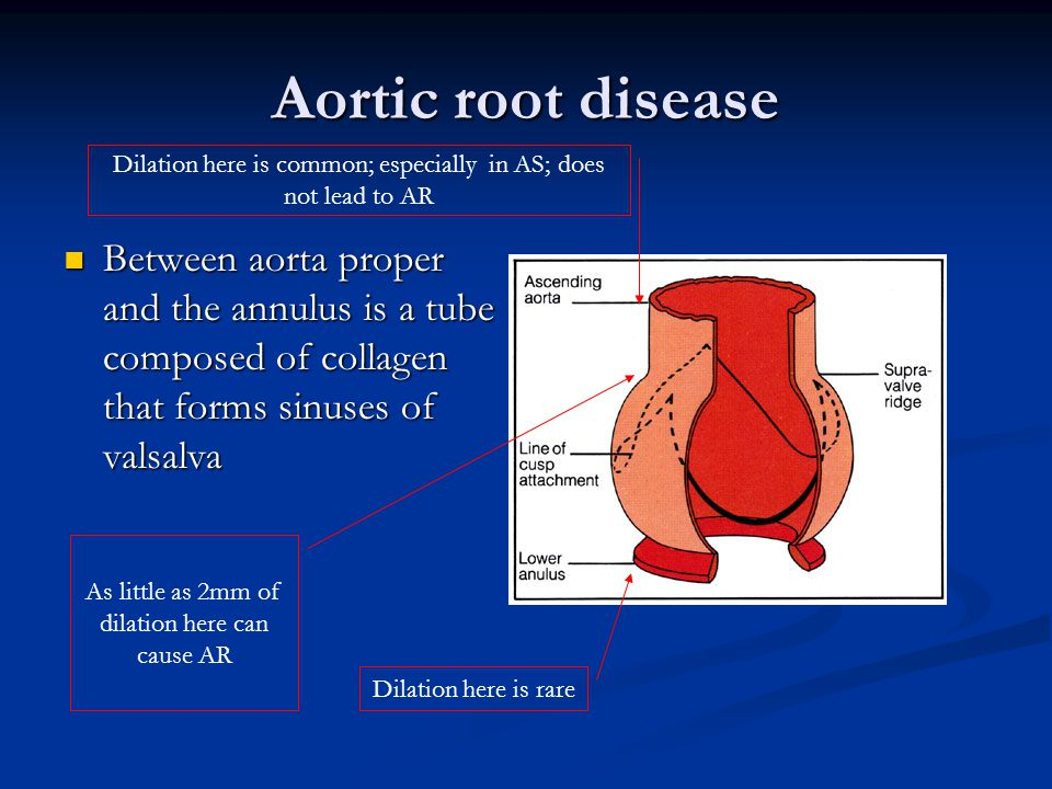 Aortic root disease Dilation here is common; especially in AS; does not lead to AR.
