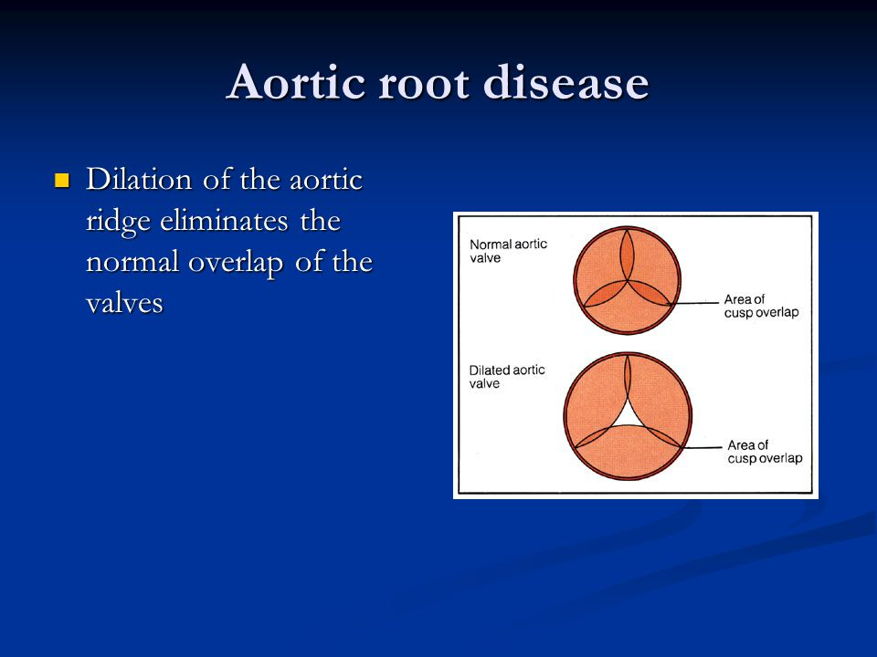 Aortic root disease Dilation of the aortic ridge eliminates the normal overlap of the valves
