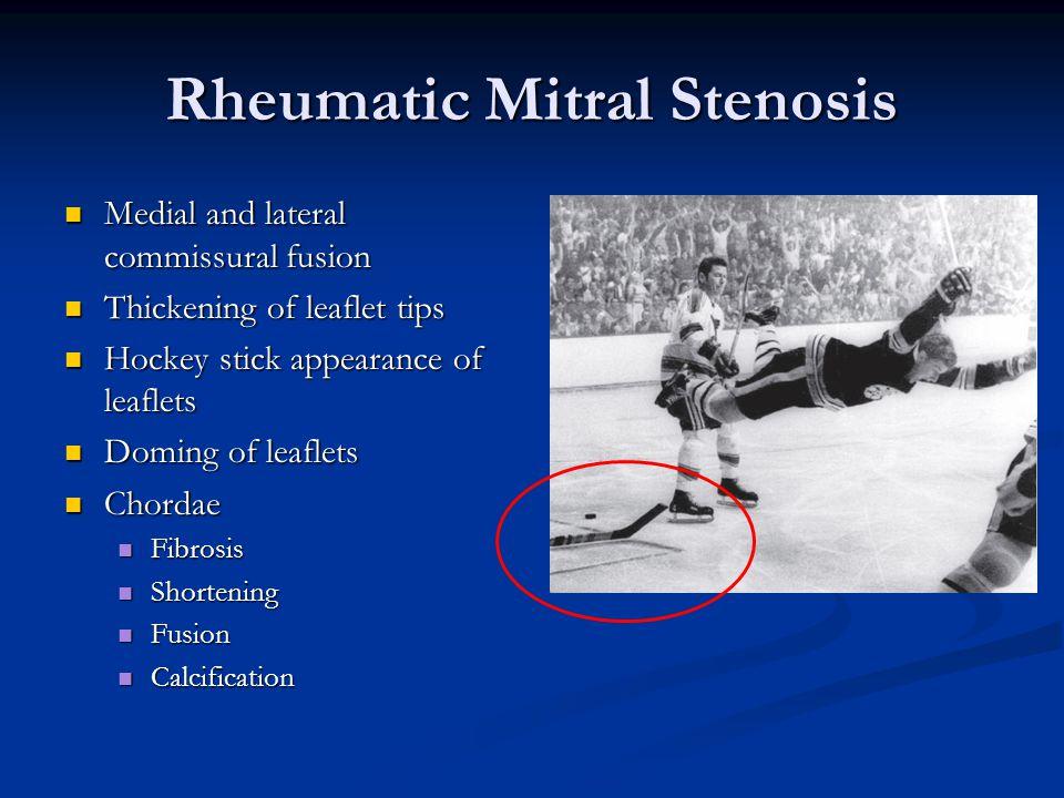 Rheumatic Mitral Stenosis