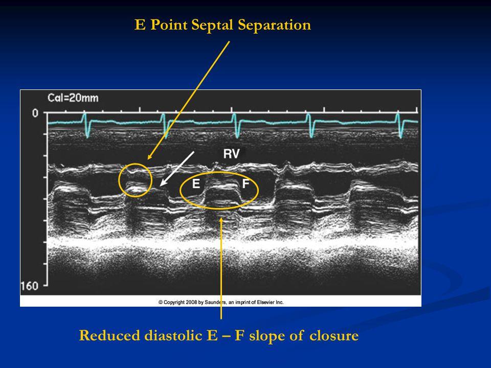 E Point Septal Separation