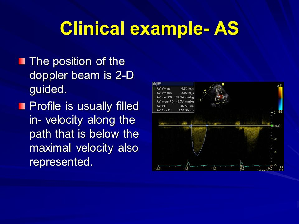 Clinical example- AS The position of the doppler beam is 2-D guided.