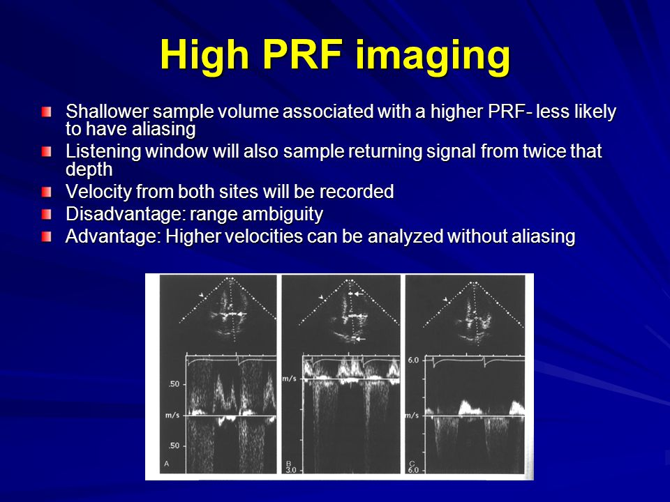 High PRF imaging Shallower sample volume associated with a higher PRF- less likely to have aliasing.