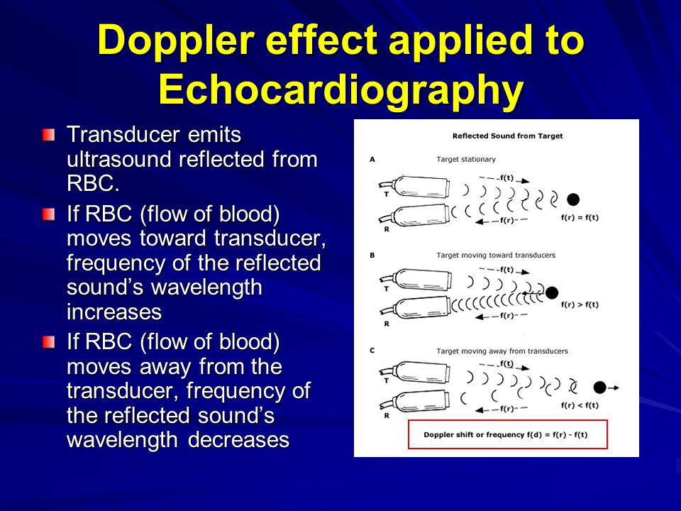 Doppler effect applied to Echocardiography