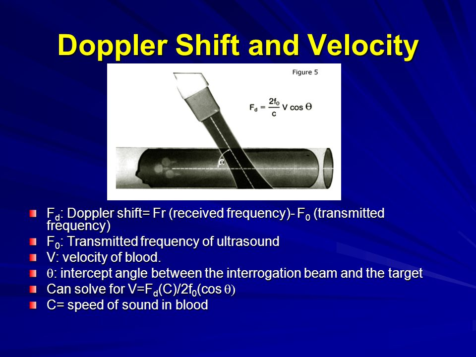 Doppler Shift and Velocity