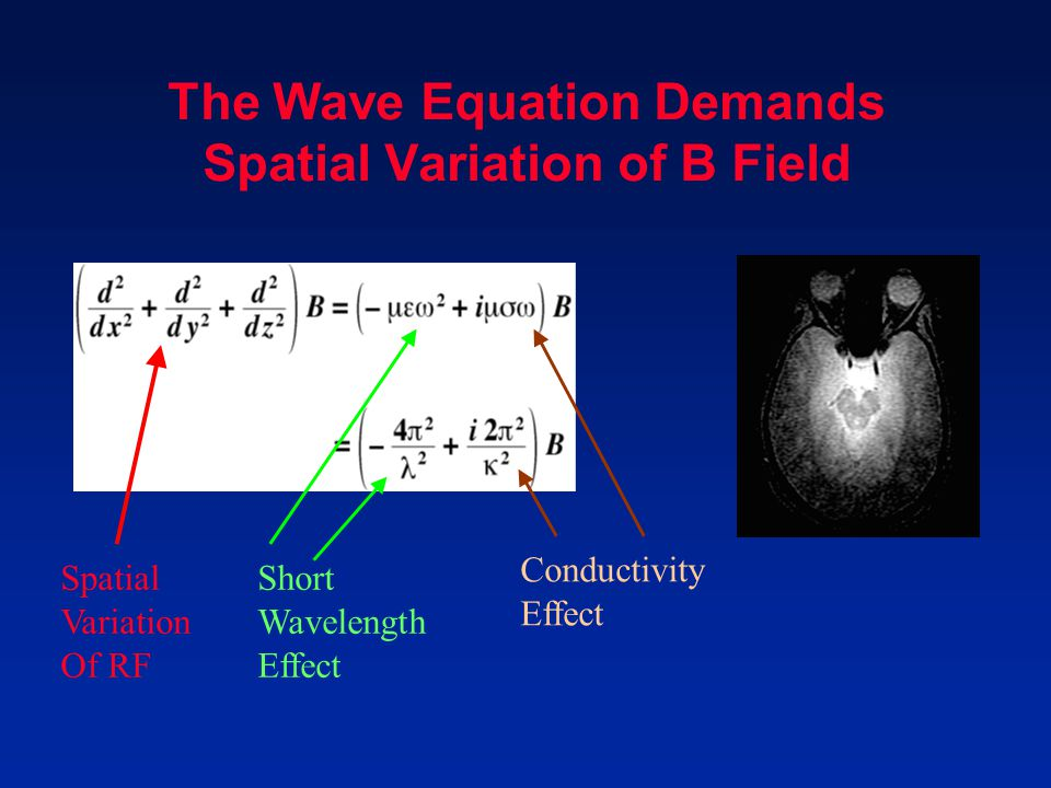 The Wave Equation Demands Spatial Variation of B Field