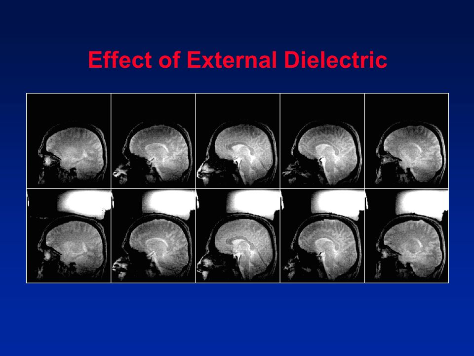 Effect of External Dielectric