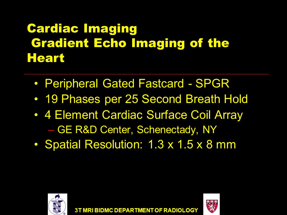 Cardiac Imaging Gradient Echo Imaging of the Heart