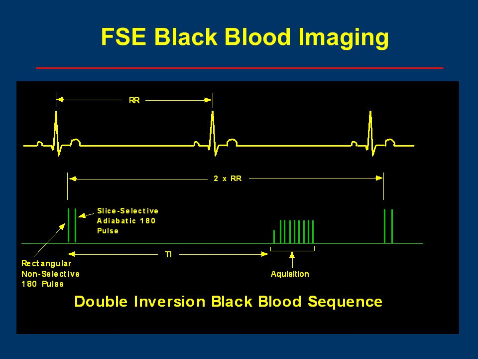 FSE Black Blood Imaging