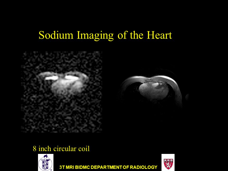 Sodium Imaging of the Heart