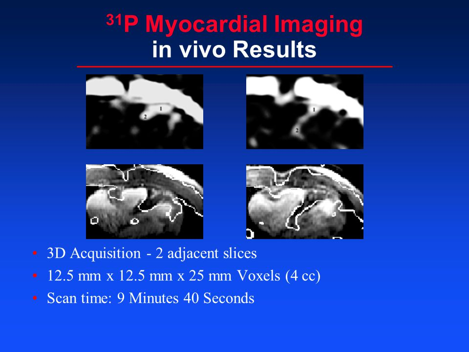 31P Myocardial Imaging in vivo Results