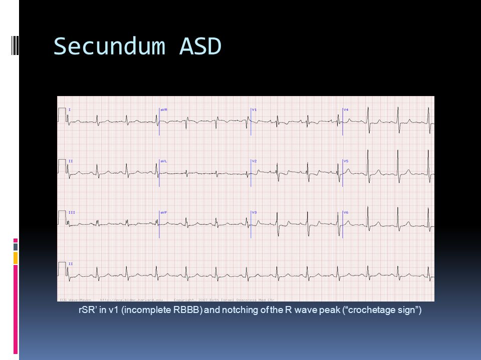 Secundum ASD rSR' in v1 (incomplete RBBB) and notching of the R wave peak ( crochetage sign )