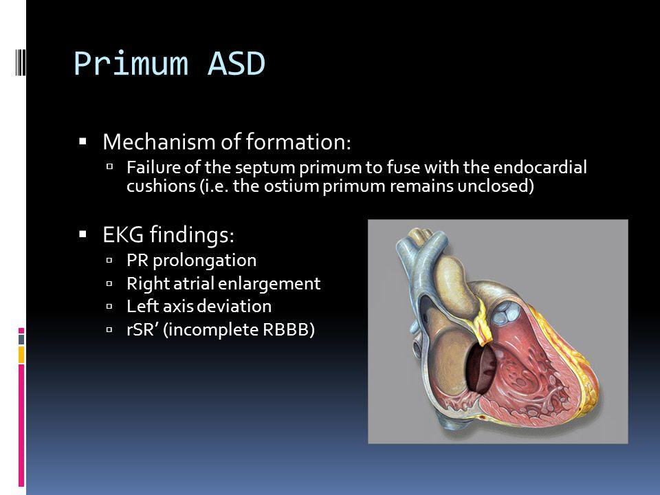 Primum ASD Mechanism of formation: EKG findings: