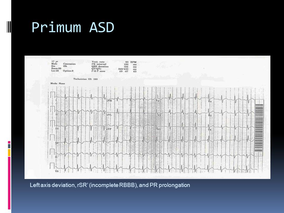 Primum ASD Left axis deviation, rSR' (incomplete RBBB), and PR prolongation