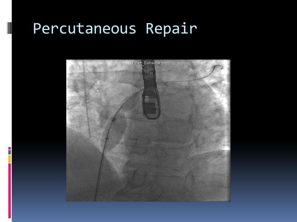Percutaneous Repair