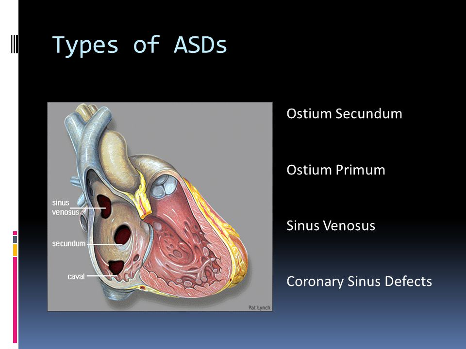 Types of ASDs Ostium Secundum Ostium Primum Sinus Venosus