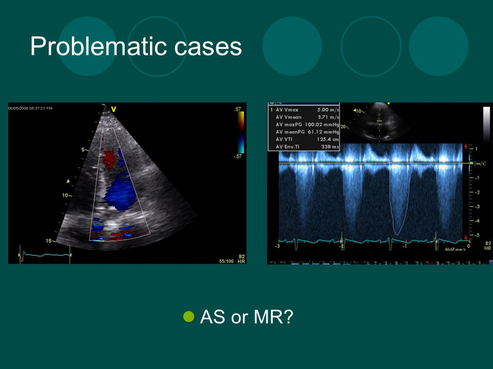 Problematic cases AS or MR