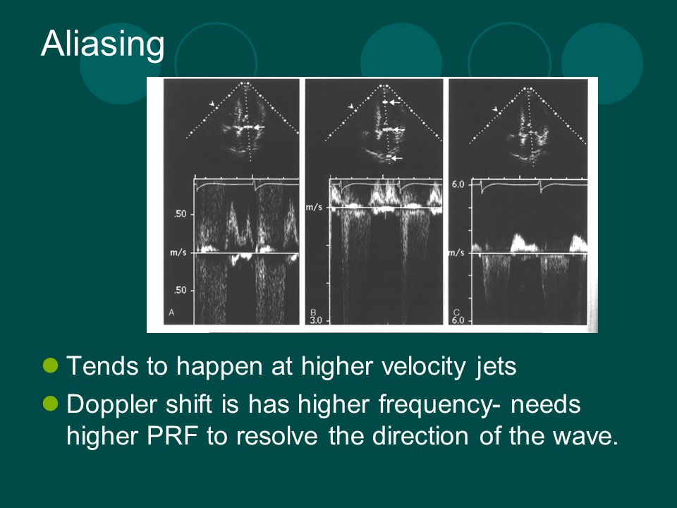Aliasing Tends to happen at higher velocity jets