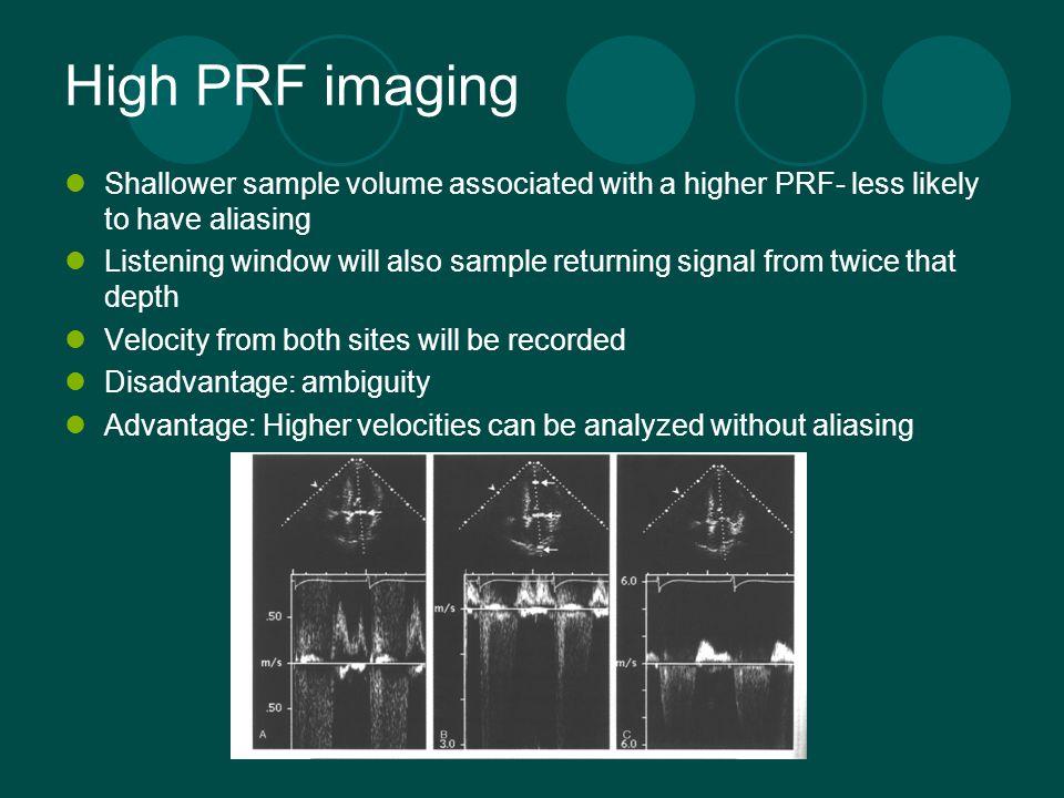 doppler echocardiography