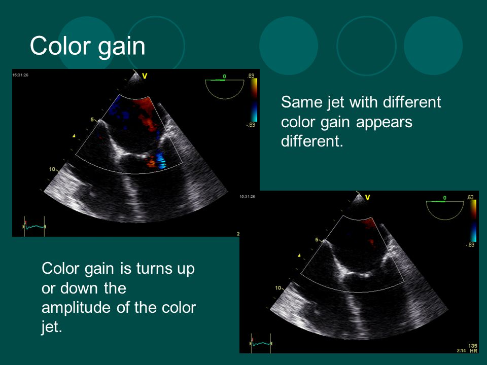 Color gain Same jet with different color gain appears different.