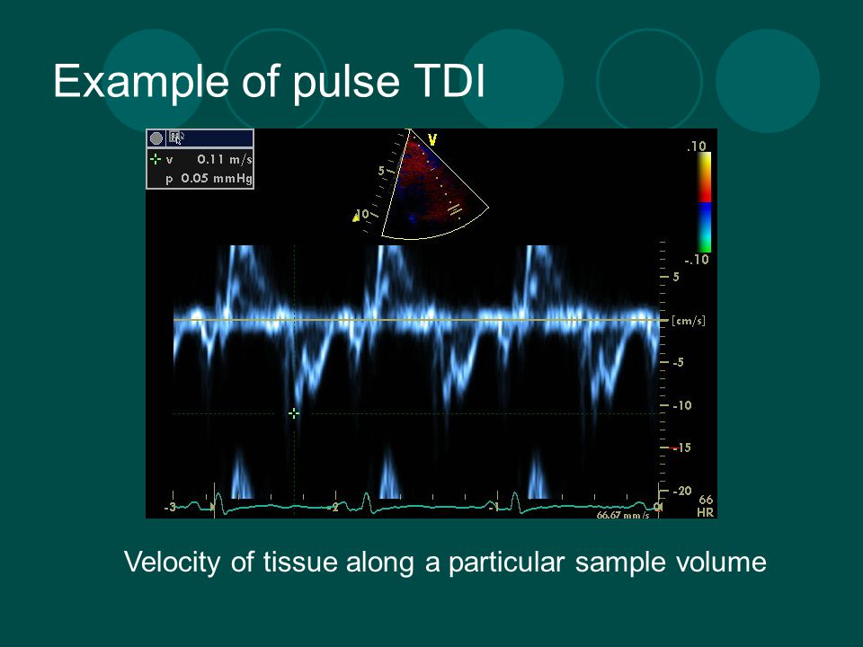 Example of pulse TDI Velocity of tissue along a particular sample volume