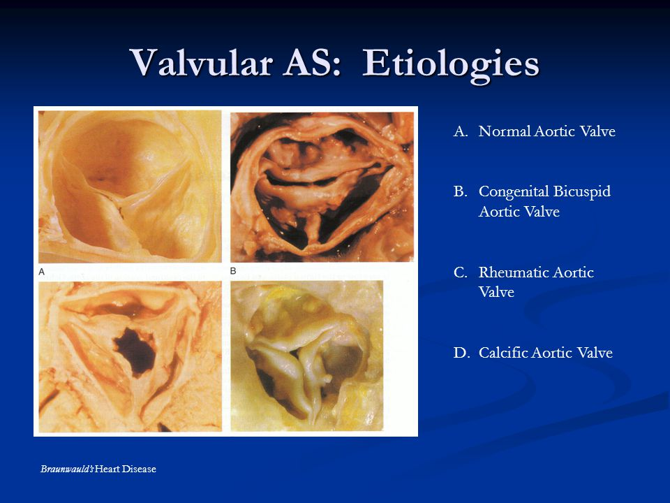 Valvular AS: Etiologies