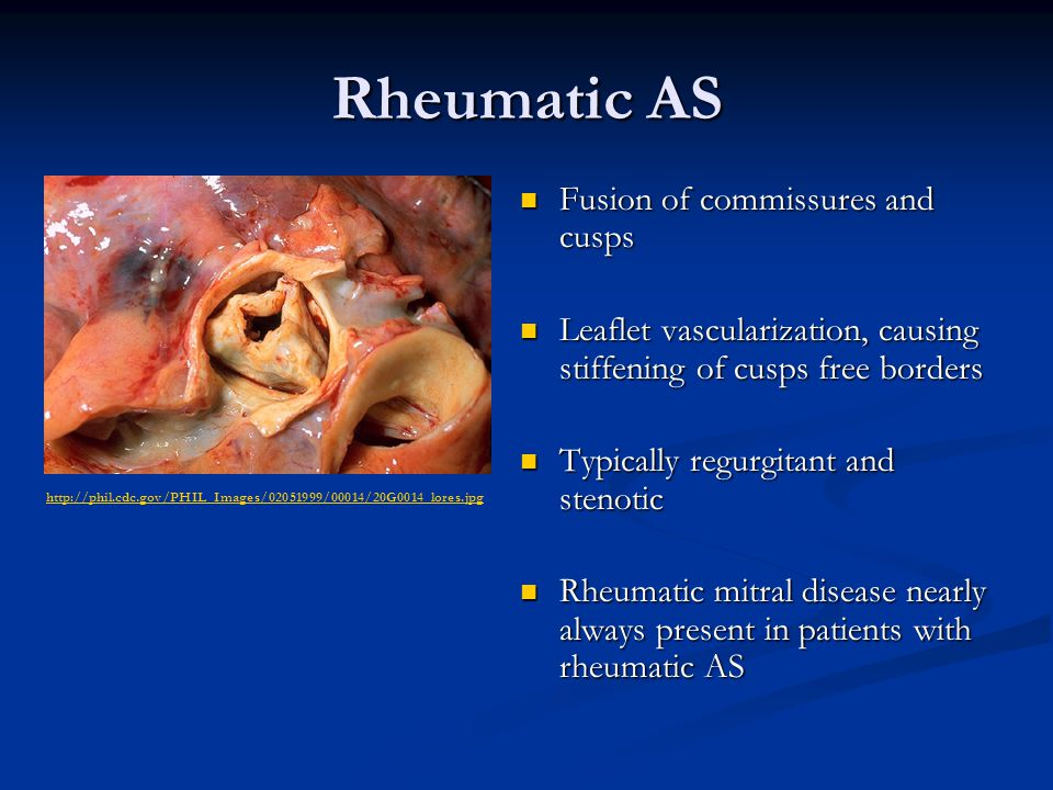 Rheumatic AS Fusion of commissures and cusps