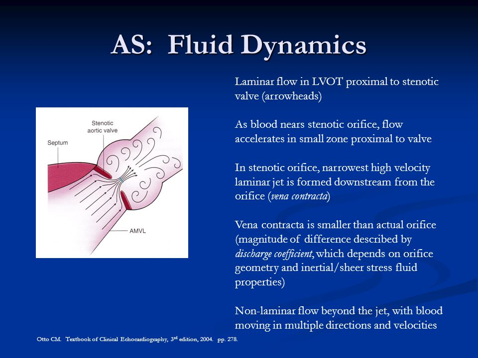 AS: Fluid Dynamics Laminar flow in LVOT proximal to stenotic valve (arrowheads)