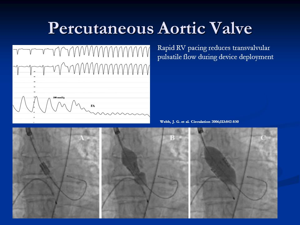Percutaneous Aortic Valve