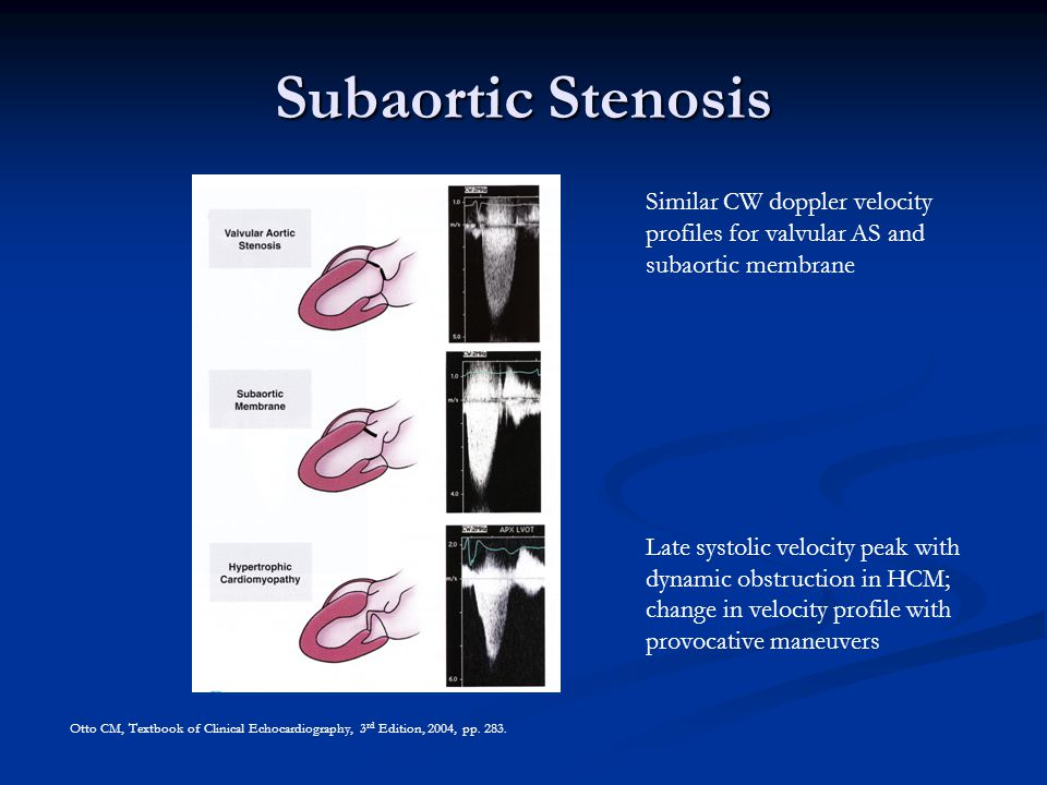 Subaortic Stenosis Similar CW doppler velocity profiles for valvular AS and subaortic membrane.