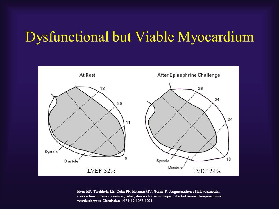 Dysfunctional but Viable Myocardium