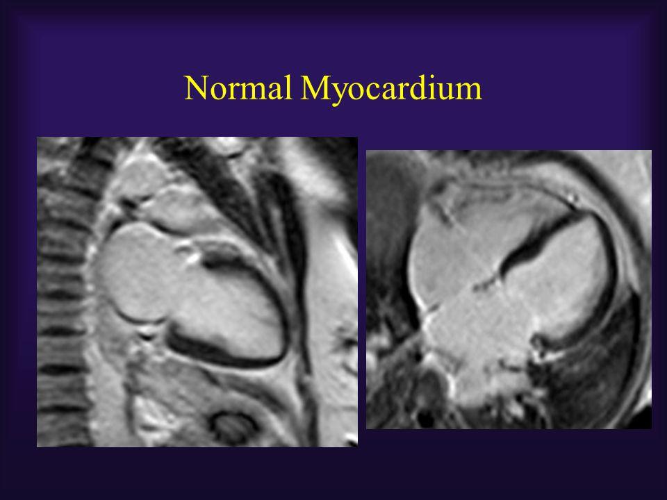 Normal Myocardium