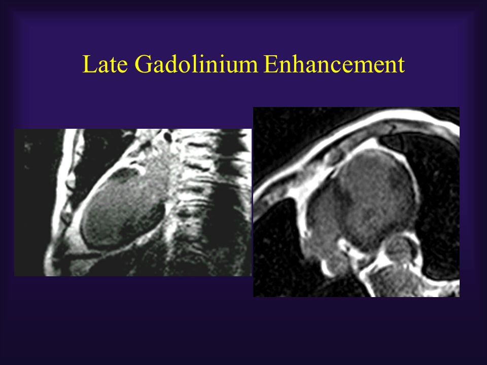 Late Gadolinium Enhancement