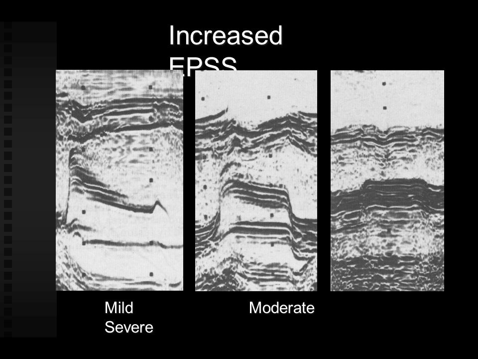 Increased EPSS Mild Moderate Severe