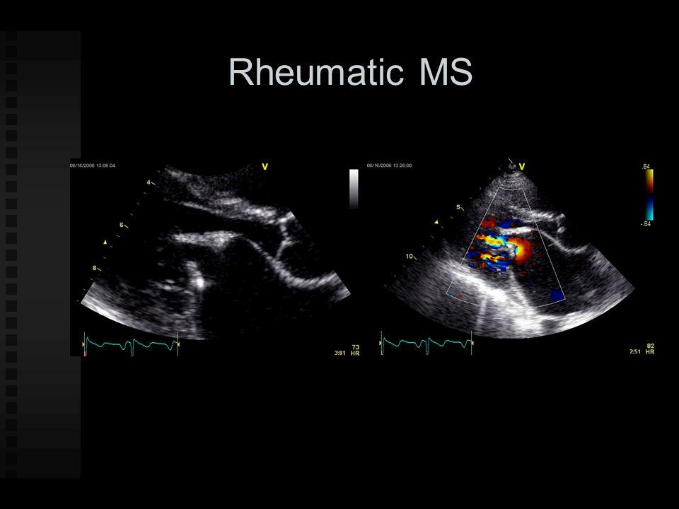 Rheumatic MS