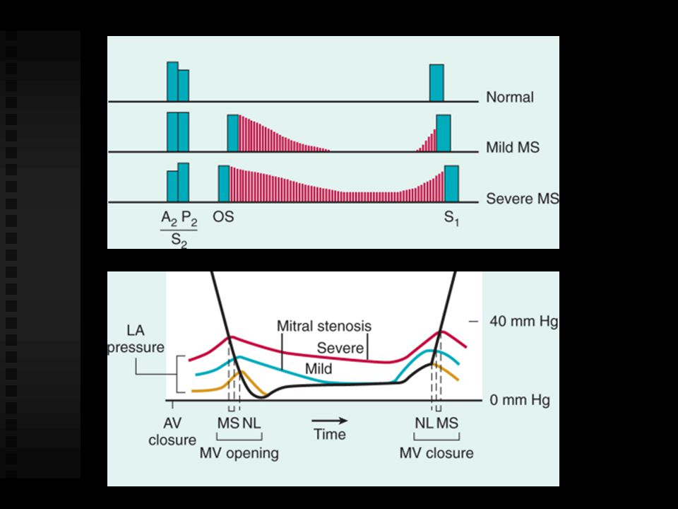 MV Orifice Area Normal 4 - 6 cm2 Mild stenosis 1.6 - 2.5 cm2