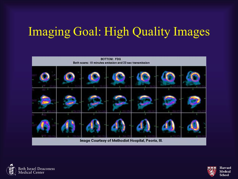 Imaging Goal: High Quality Images