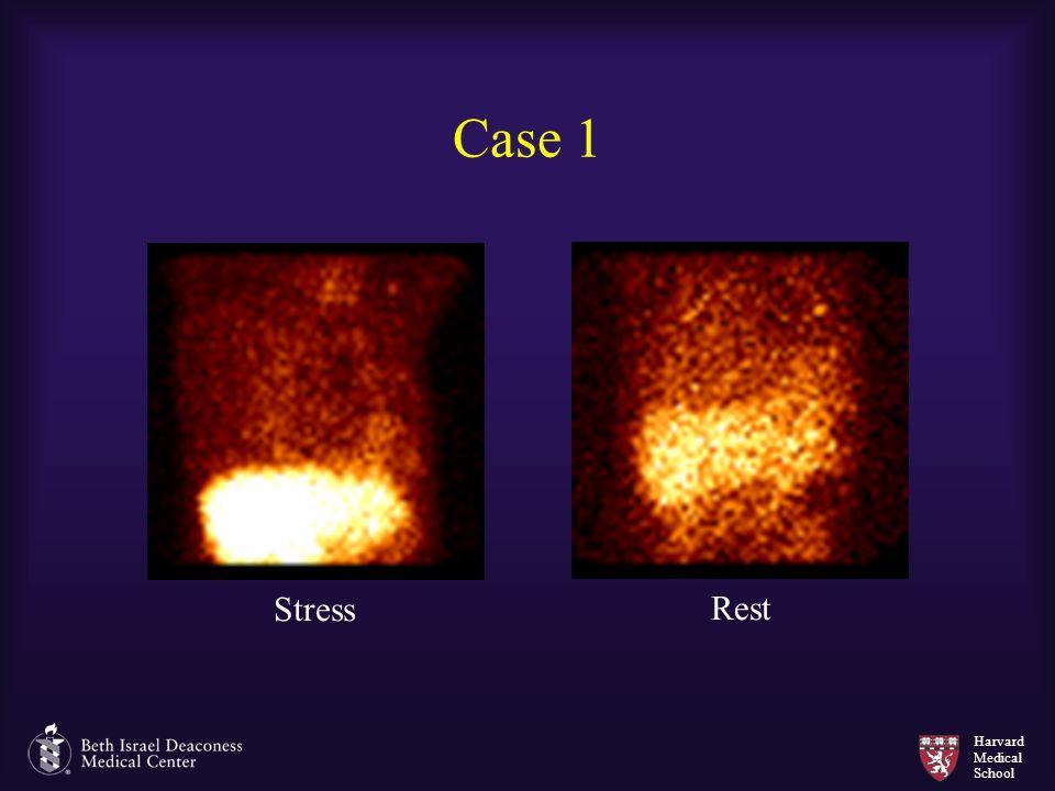 Case 1 Stress Rest