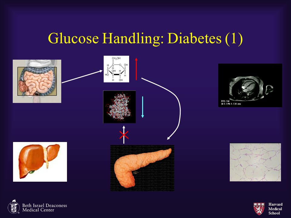Glucose Handling: Diabetes (1)