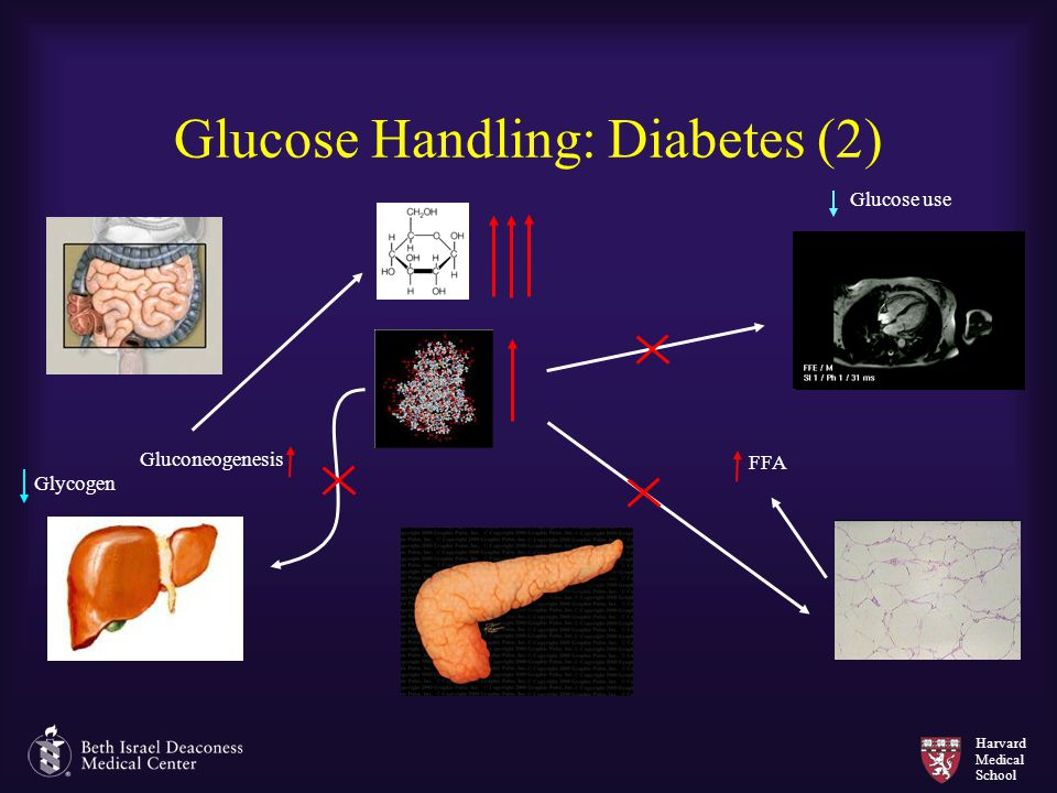 Glucose Handling: Diabetes (2)