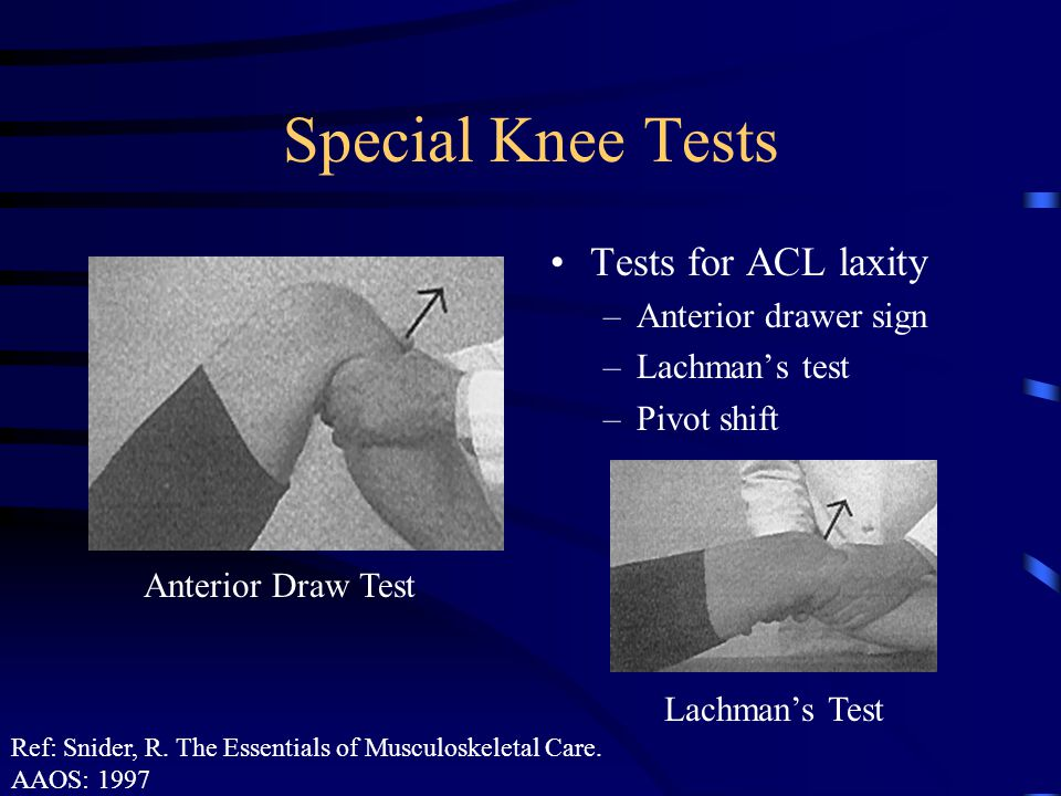 Special Knee Tests Tests for ACL laxity Anterior drawer sign