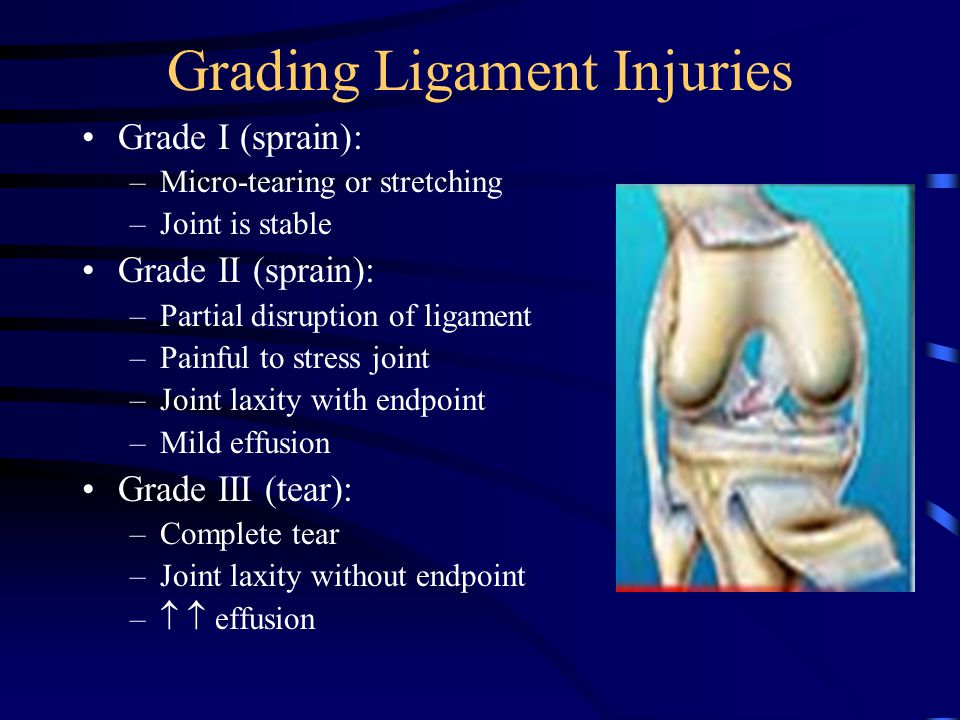Grading Ligament Injuries