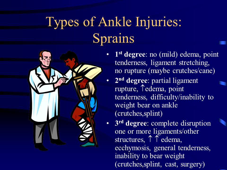 Types of Ankle Injuries: Sprains