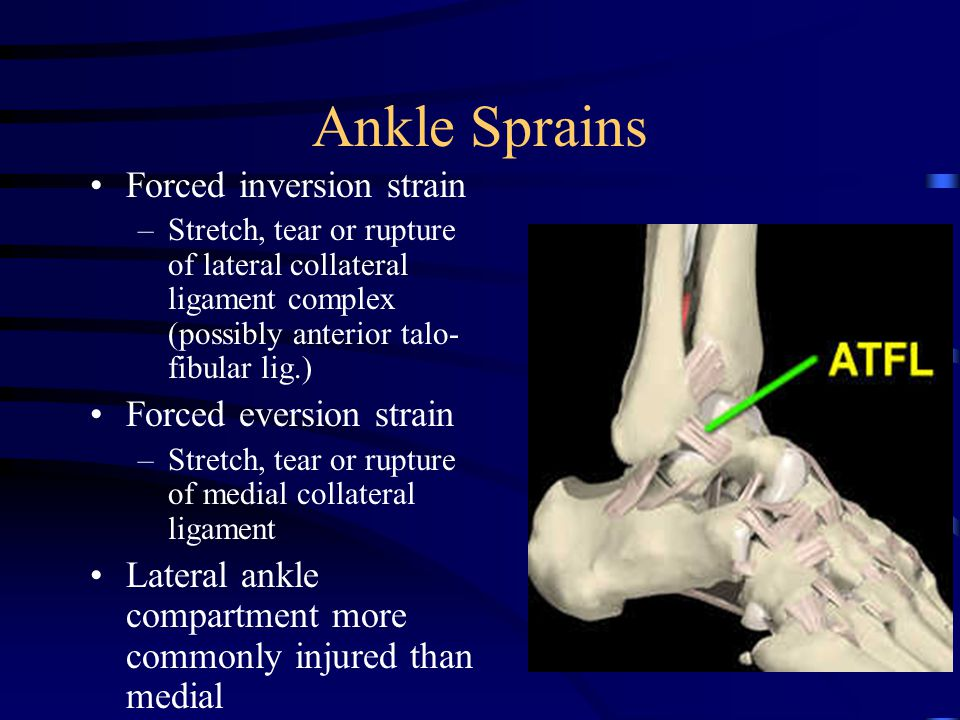 Ankle Sprains Forced inversion strain Forced eversion strain