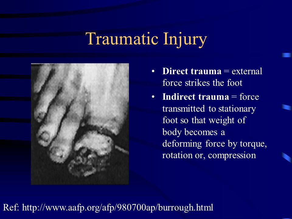 Traumatic Injury Direct trauma = external force strikes the foot