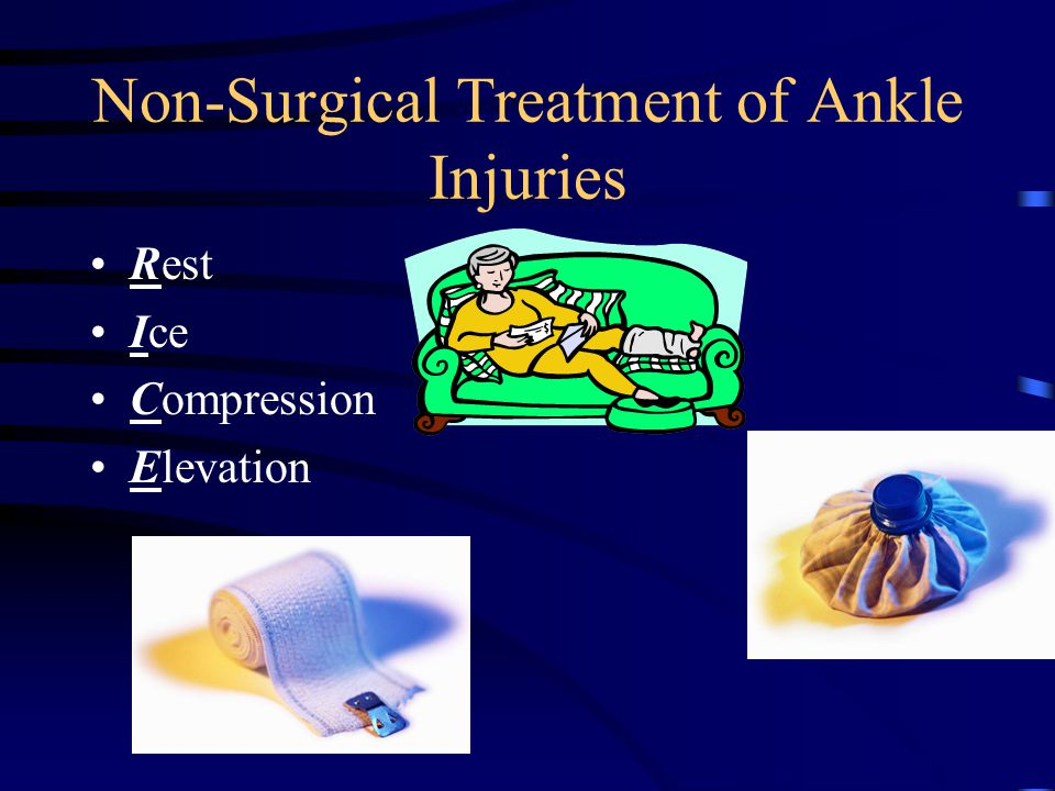 Non-Surgical Treatment of Ankle Injuries
