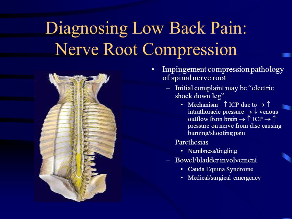 Diagnosing Low Back Pain: Nerve Root Compression