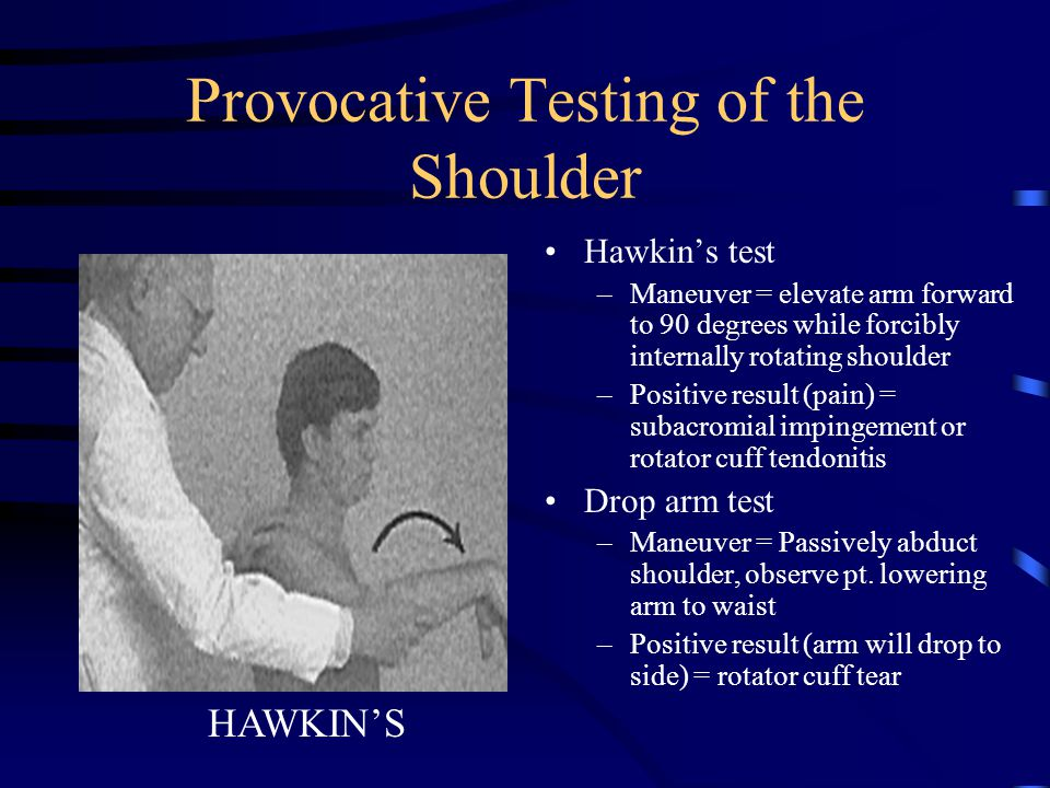 Provocative Testing of the Shoulder