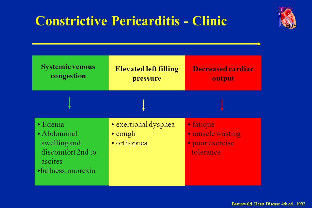 Constrictive Pericarditis - Clinic