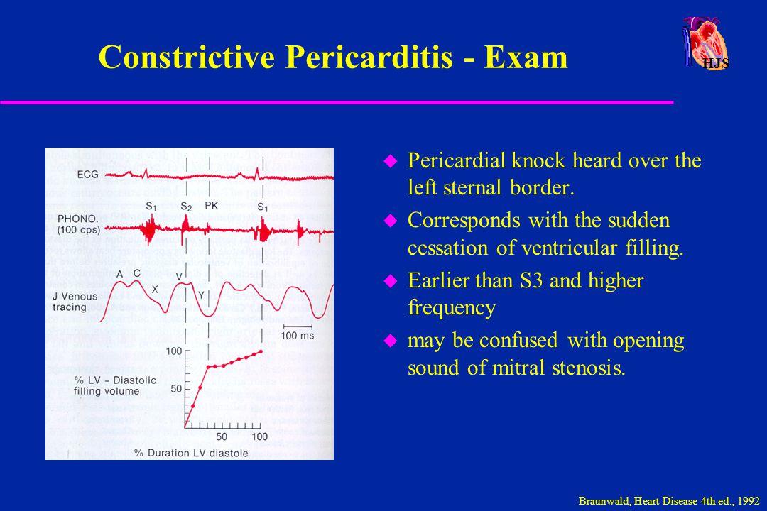 Constrictive Pericarditis - Exam